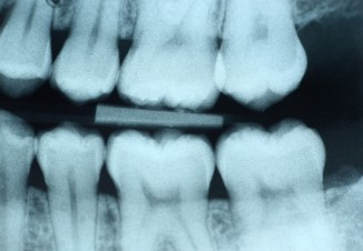Dental x-ray (bite-wing) of the left side without any visible decay.