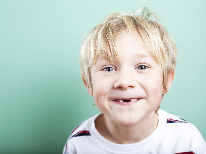 Boy with missing front teeth